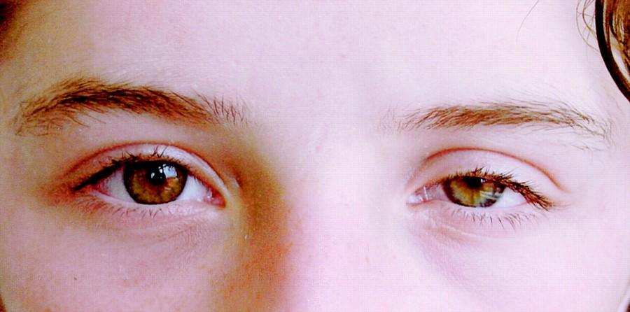 Синдром верхней глазной щели