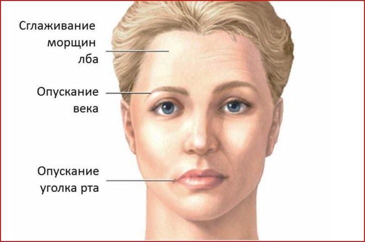 Симптомы лицевого гемиспазма
