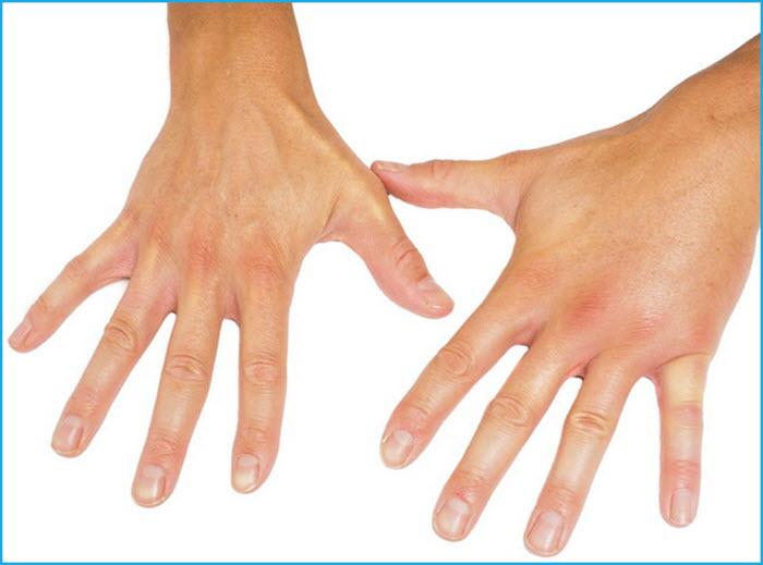 Здоровая и больная руки