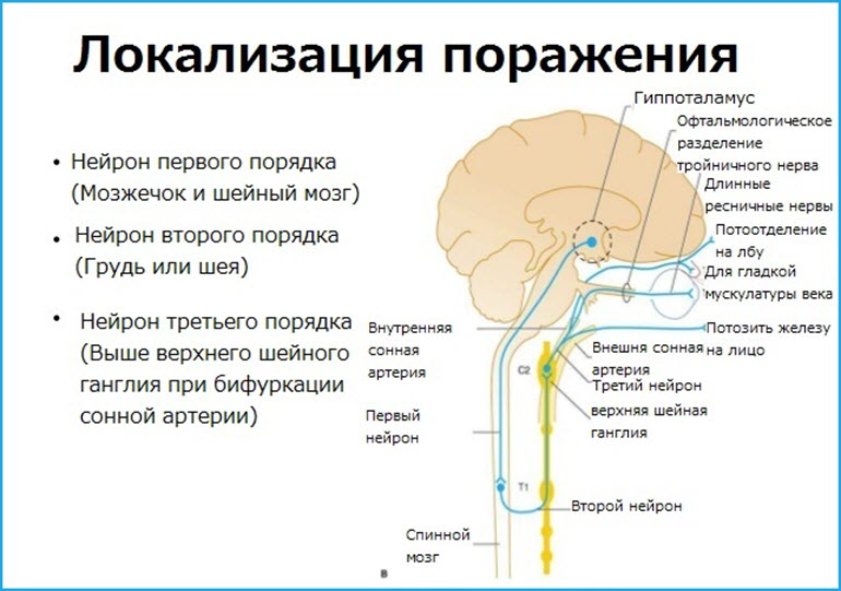 Локализация синдрома Горнера