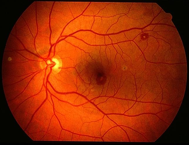 Сосуды глазного дна