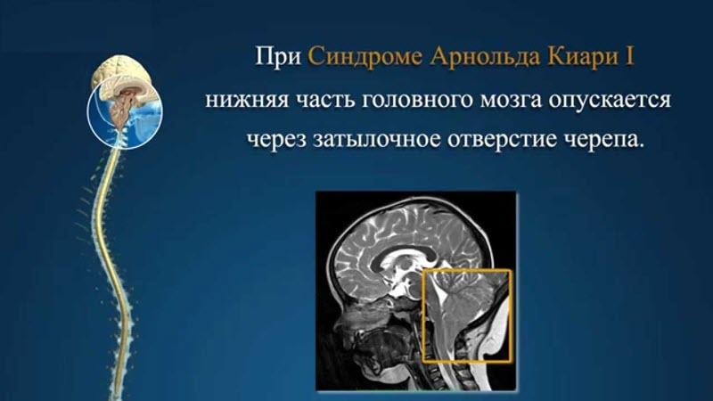 Что такое синдром Арнольда–Киари