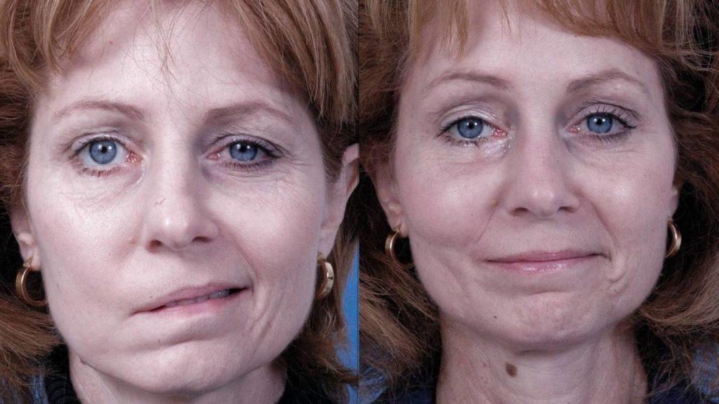 Перекос лицевых мышц