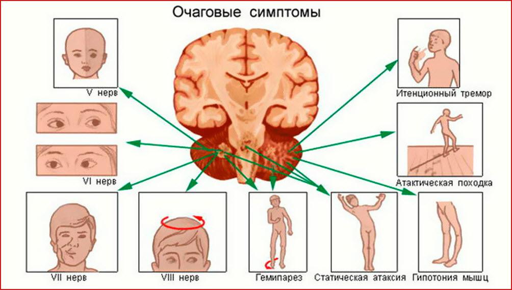 Симптомы поражения головного мозга