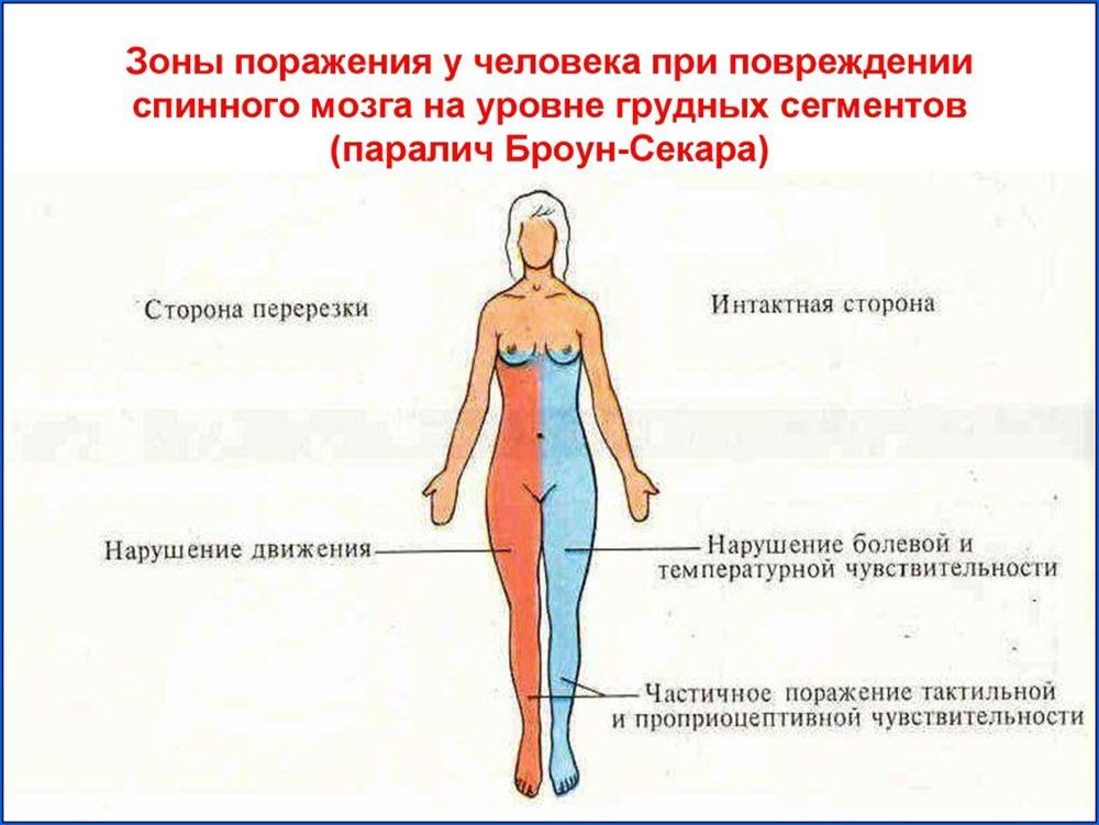 Зоны поражения при синдроме Броун-Секара