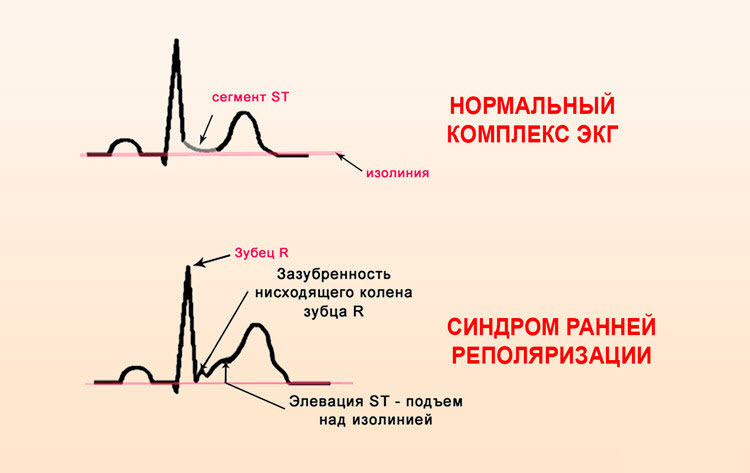 ЭКГ при ранней реполяризации желудочков