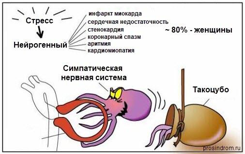 Последствия синдрома такоцубо