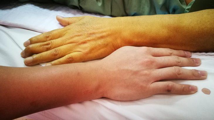 Изменения цвета кожи при поражениях печени