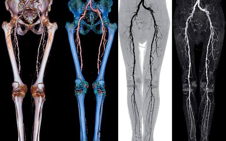 Компьютерная томография вен с применением контраста