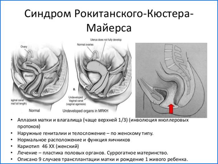 синдром Рокитанского-Кюстнера