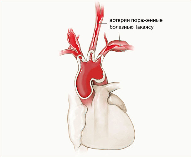 Артерии, пораженные болезнью Такаясу