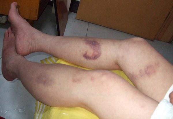 Синяки при больной геморрагическом синдроме