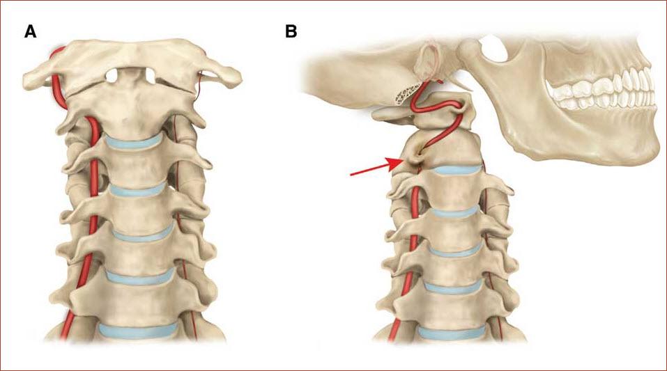 Защемление позвоночной артерии
