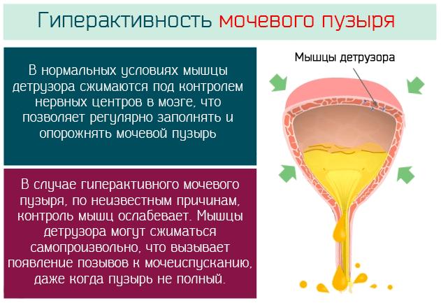 Что такое гиперактивность мочевого пузыря
