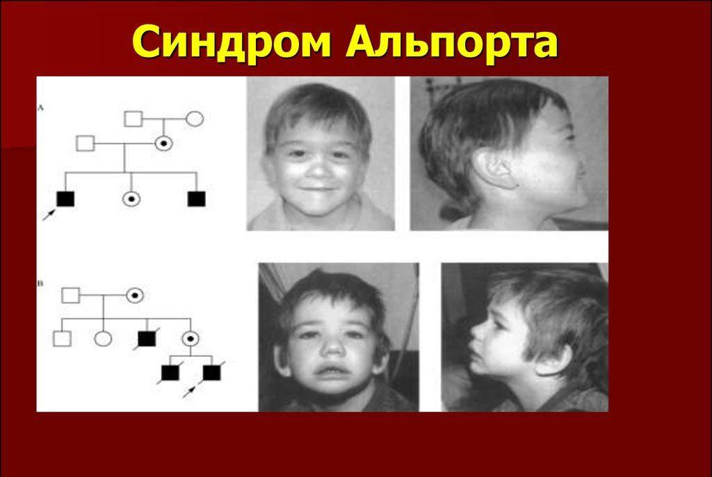 Генетическое наследование синдрома Альпорта
