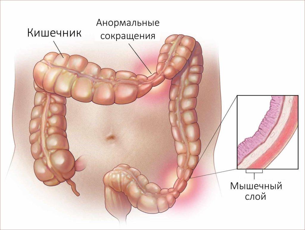 Успокоительное при синдроме раздраженного кишечника