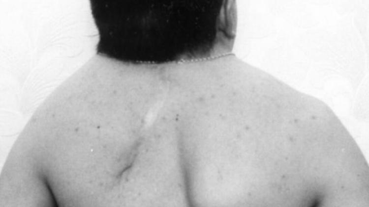 Синдром Клиппеля Фейля