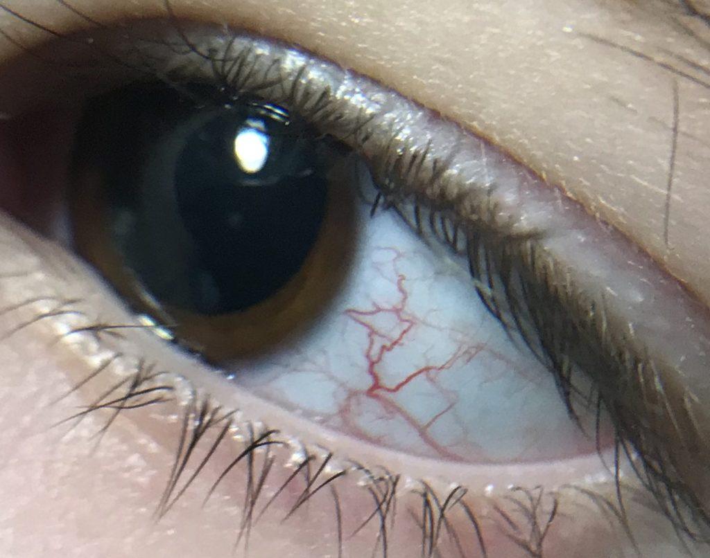 Глазные проявления синдрома Луи -Бар