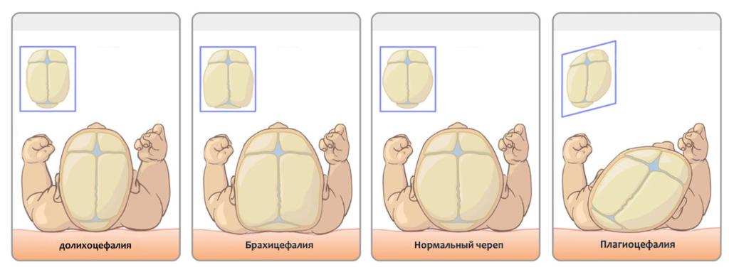 Деформации черепа