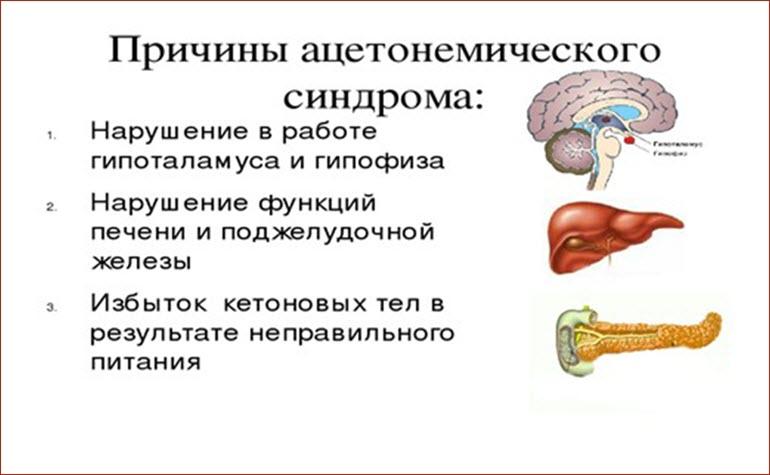 Причины ацетонемического синдрома