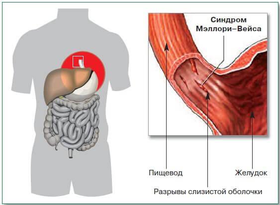 Разрыв слизистой желудка