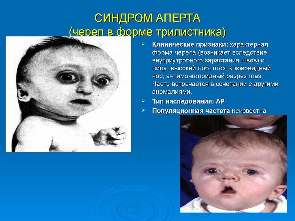 Дети с синдромом Аперта