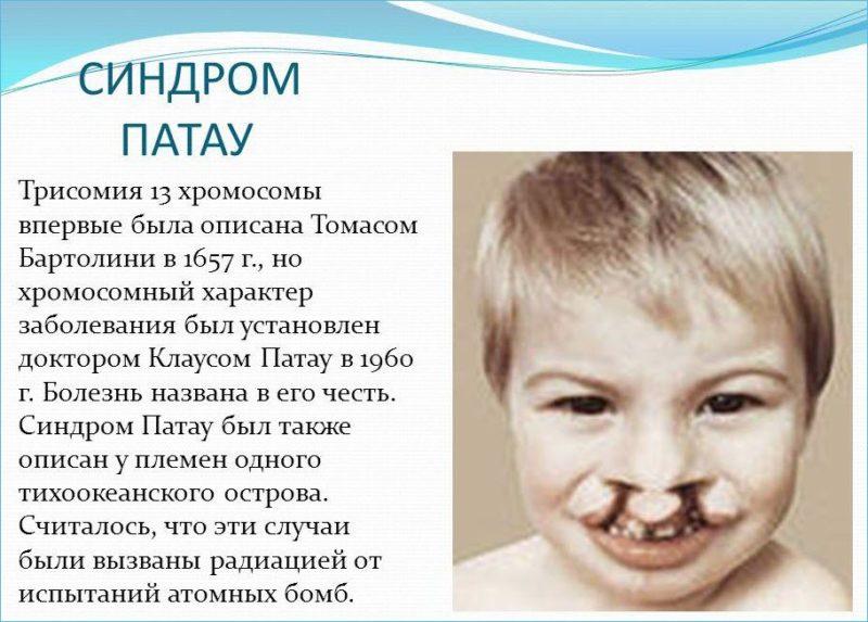 Описание синдрома Патау