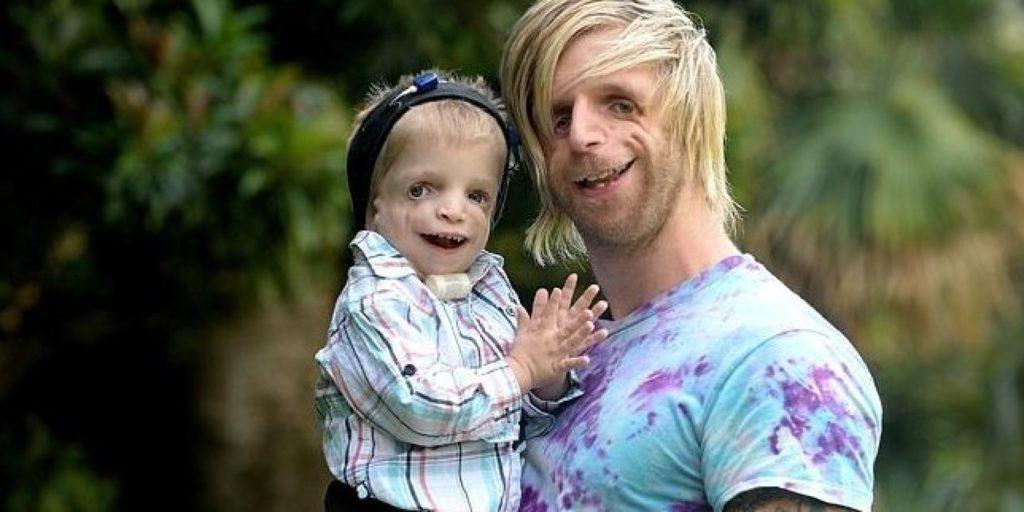 Отец и ребенок с синдромом Тричера Колинза