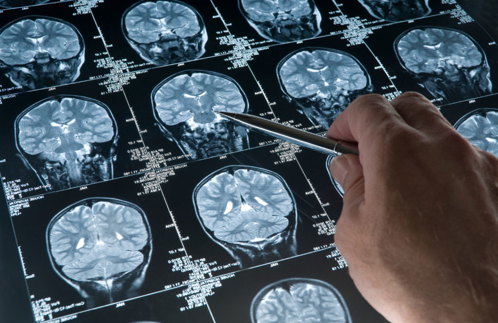МРТ костных структур и головного мозга