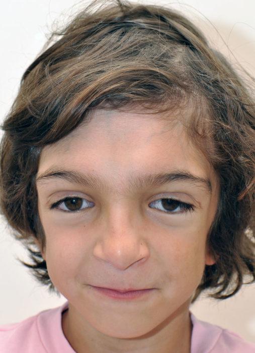 Ребенок с синдромом Крузона