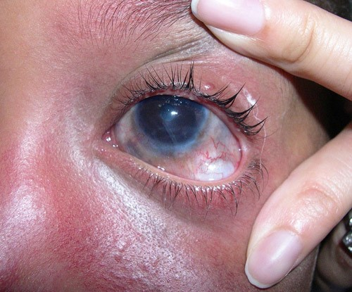 Глазные признаки гемангиомы