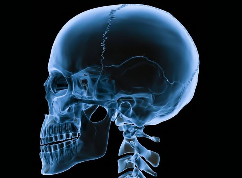 Рентгенография черепной коробки