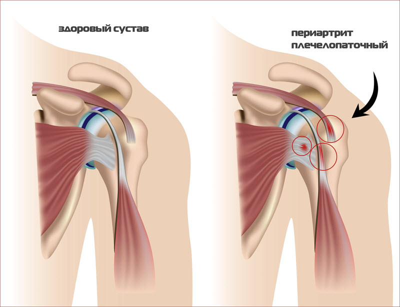 Больной плечевой сустав