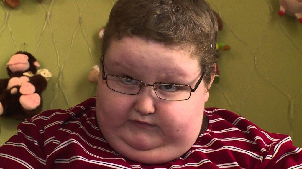 Мальчик с синдромом Прадера-Вилли