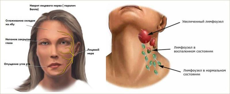 Воспаление нервного узла