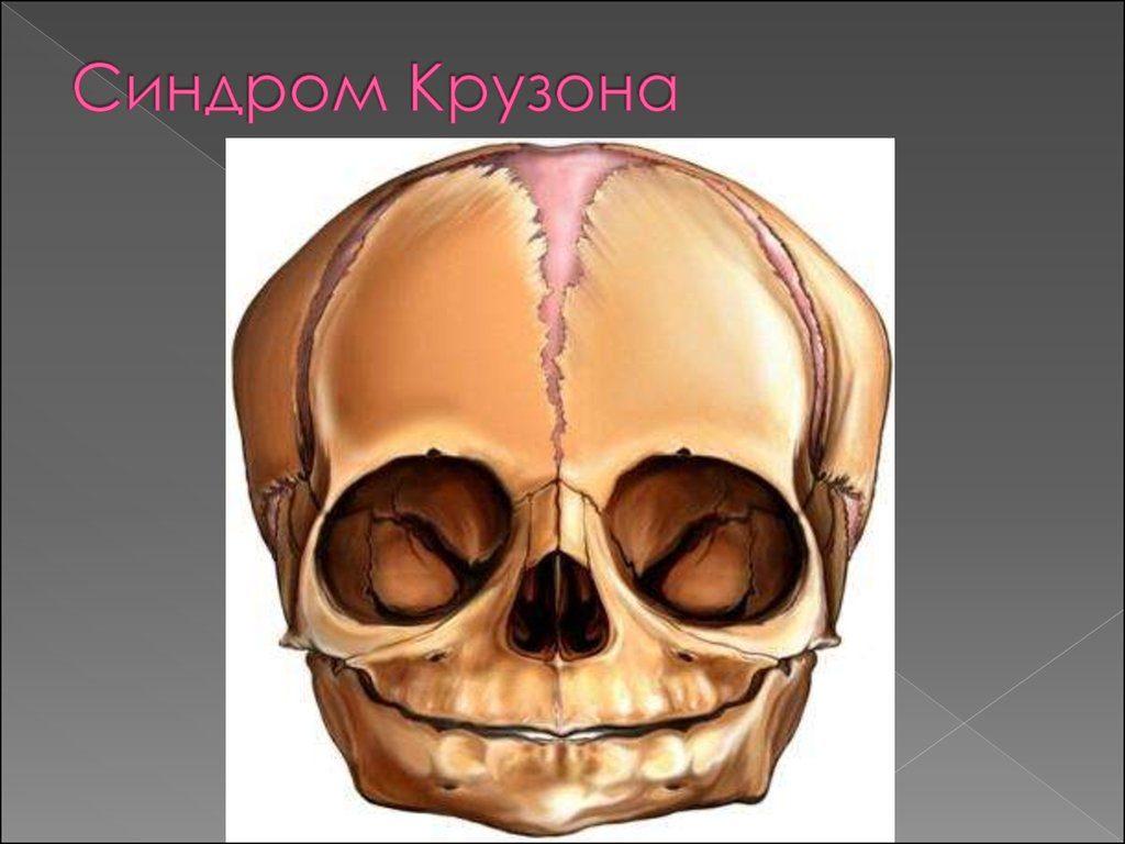 Череп при синдроме Крузона