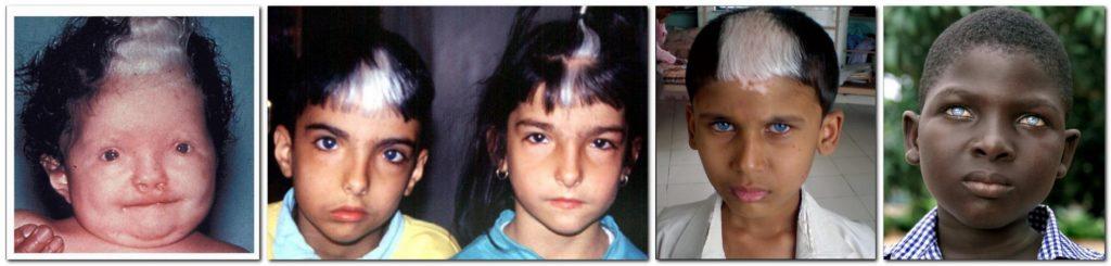 Дети с синдромом Ваарденбурга