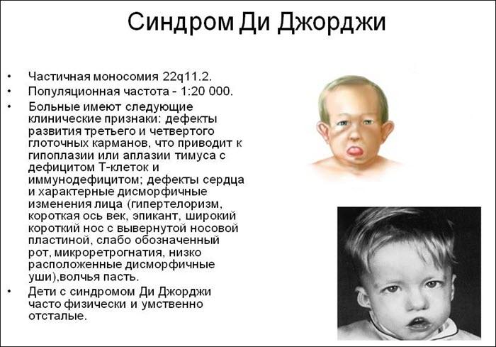 Синдром Ди Джорджи