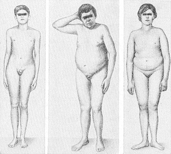 ·евнухоидный вариант телосложения