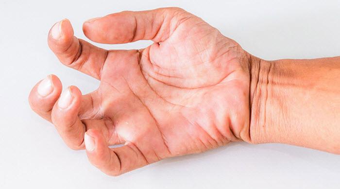 Мышечная дистония у взрослых