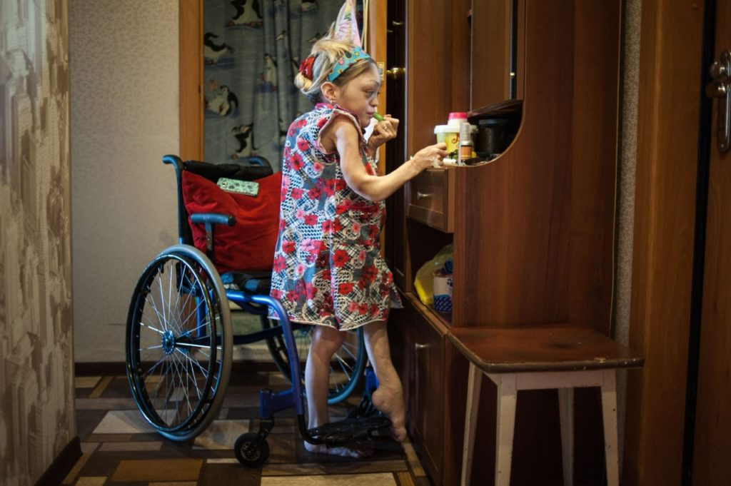 Девушка с синдромом Олбрайта