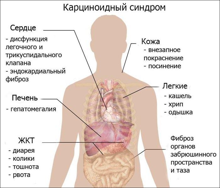 Последствия карциноидного синдрома