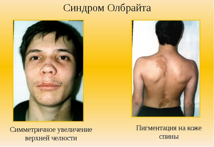 Признаки синдрома Олбрайта