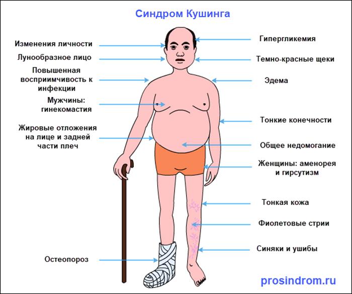 Симптомы синдрома Кушинга