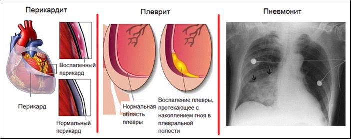 Осложнения при синдроме Дресслера