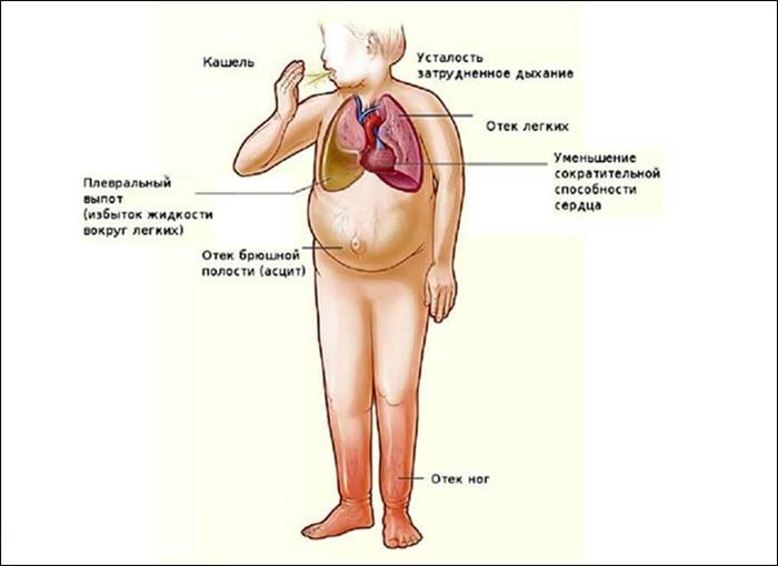 Симтомы сердечной недостаточности