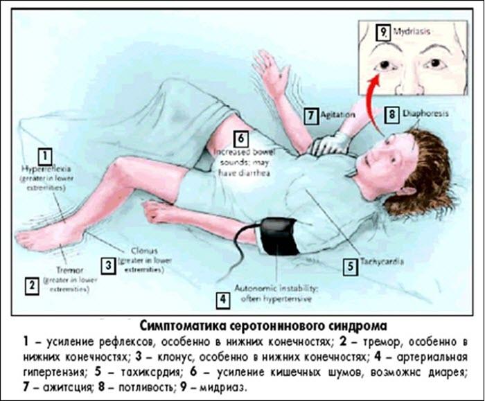 Симптомы серотонинового синдрома