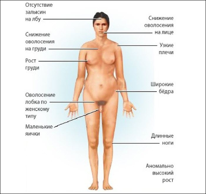 Признаки гипогонадизма у мужчин