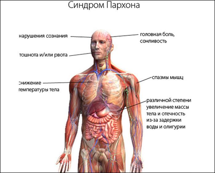 Симптомы синдрома Пархона